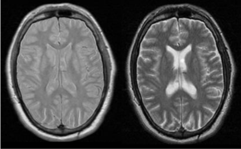 Dual Echo Fse Questions And Answers In Mri