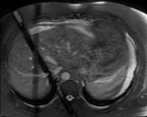 Navigator Echoes Questions And Answers In Mri