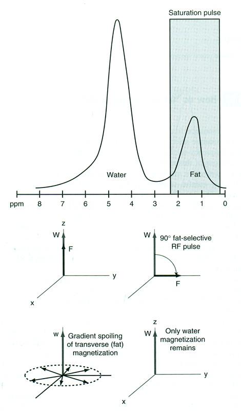 CHESS/Fat-Sat Pulses