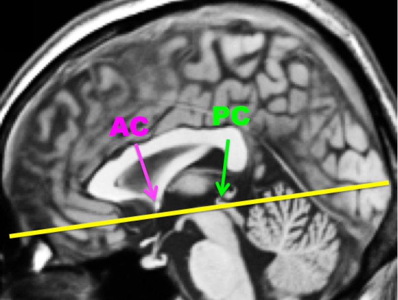 Magnetism Questions And Answers In Mri