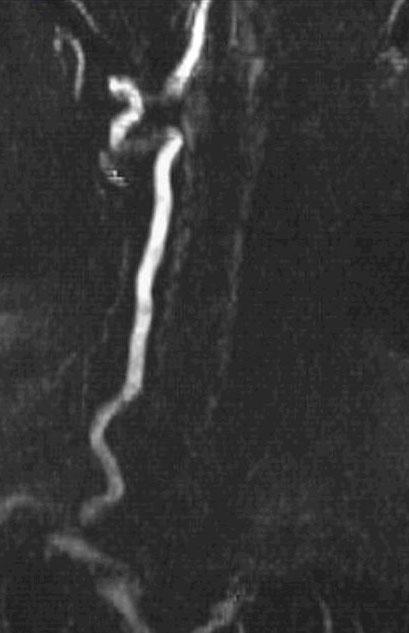 arteria basilaris ct